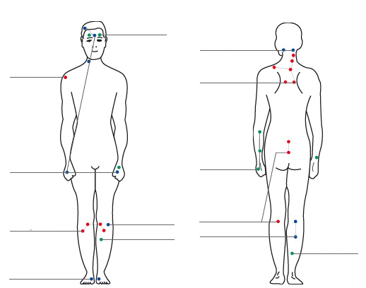 "Classic acupuncture points, so-called ""meridians"" where acupuncture is applied."